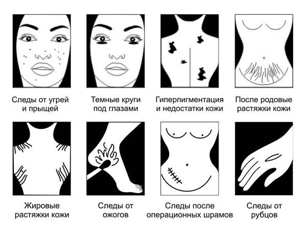 stretchmark cream russian
